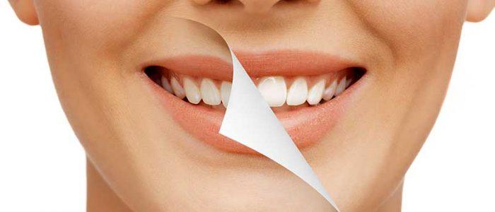 зъбни налепи
